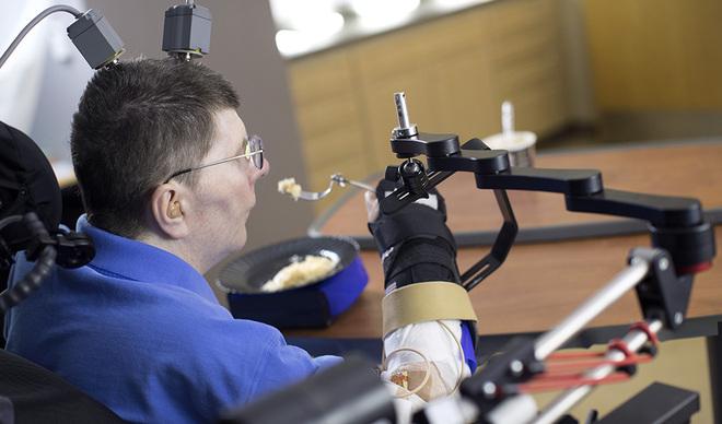 Un tetrapléjico vuelve a comer solo gracias a una prótesis conectada a sucerebro