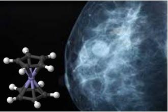 El cáncer de mama y los organomateriales