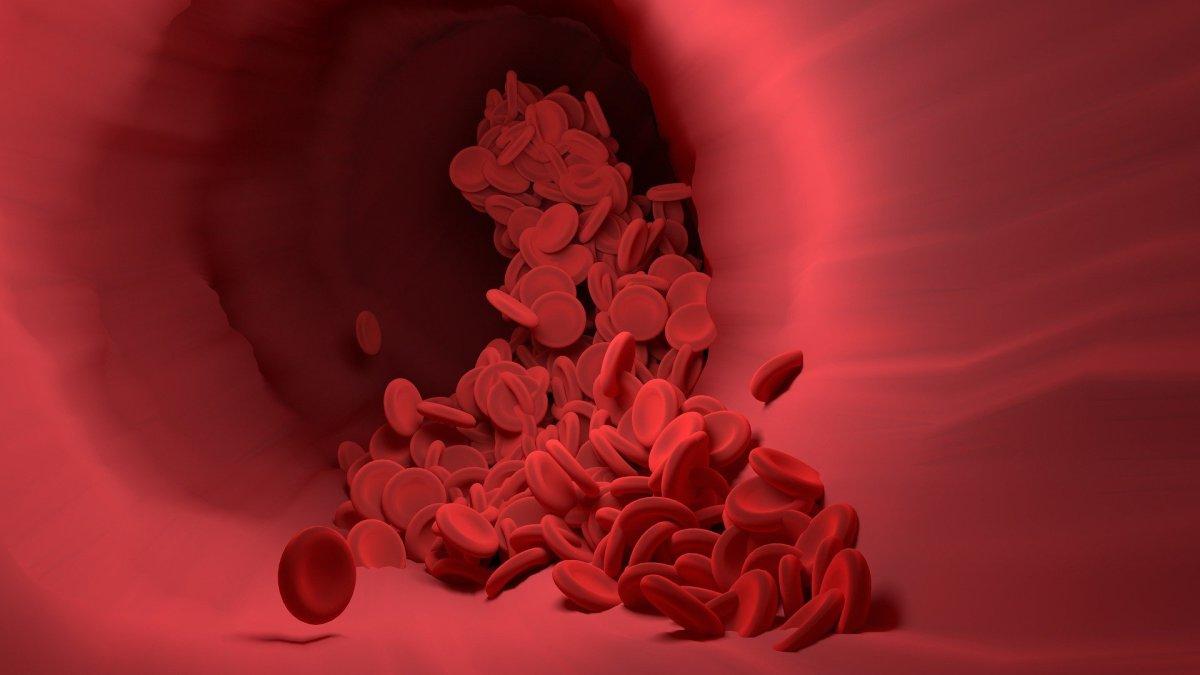 ¿Es COVID-19 una enfermedad vascular?  | TheConversation
